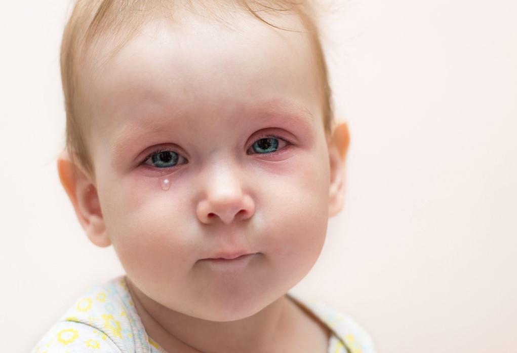 Bebeklerde Göz Altı Şişliği Neden Olur ?